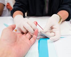 HIV Prevention Program